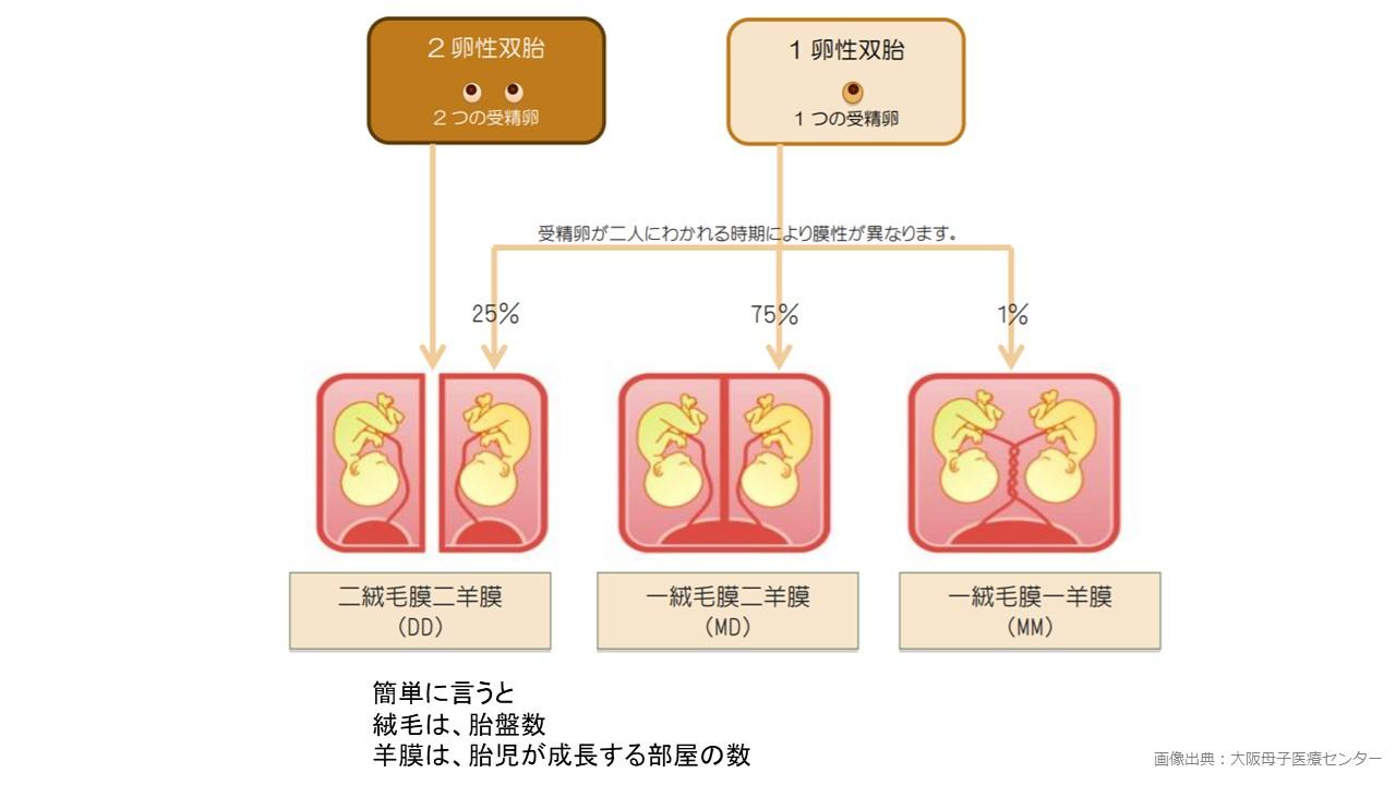 多胎(双子の)妊娠について